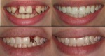 before and after: a perfect smile opens many doors